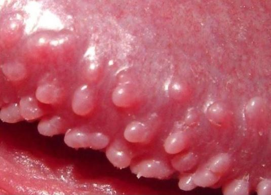 Red Spots on Penis, Dots, Patch, Bumps on Penile Shaft