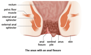 Anal fissure period