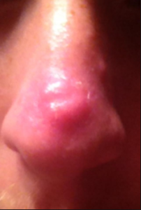 Pimple On Nose Meaning Causes Painful Huge Small